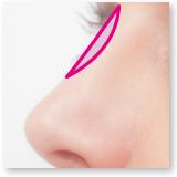 鼻のプチ整形
